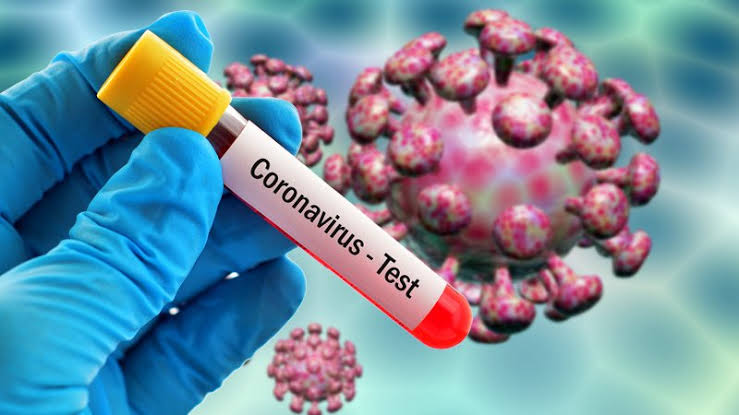 """""""74 In Lagos, 25 In Plateau"""" - Nigeria Records 187 New Coronavirus Cases As Total Rises To 58,647 1"""