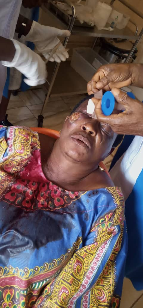 Edo Election: APC Chairman's Wife Attacked As Political Thugs Hijack Electoral Materials [Photos] 4