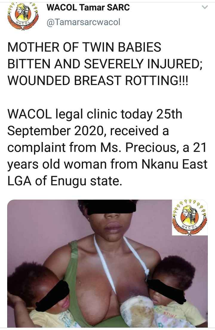 Nursing Mother Of Twins Left With Decayed Breast After Being Bitten By Her Uncle In Enugu 2