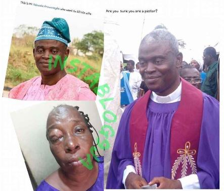 The man of God attacked his wife leaving her almost blind