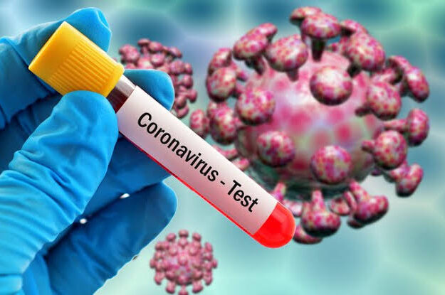 """106 In Lagos, 25 In Abuja"" – Nigeria Recored 170 New Coronavirus Cases As Total Rises To 62,691"