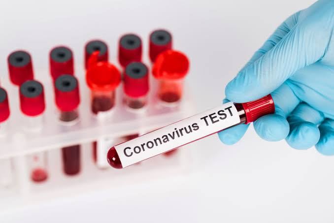 """64 In Lagos, 26 In Abuja"" - Nigeria Records 164 New Coronavirus Cases As Total Rises To 60,430 1"