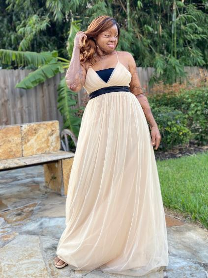Crash Survivor And Singer, Kechi Okwuchi Shares Stunning Photos to Celebrate 31st Birthday