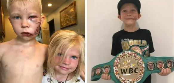 Hero Boy Who Saved Sister From Being Mauled By Dog Becomes Heavyweight Champion