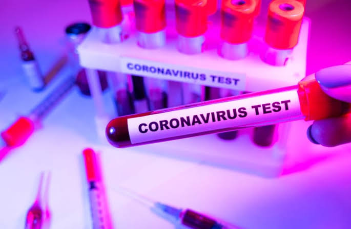 """71 In Lagos, 26 In Imo"" - Nigeria Records 212 New Coronavirus Cases As Total Rises To 64,728 1"