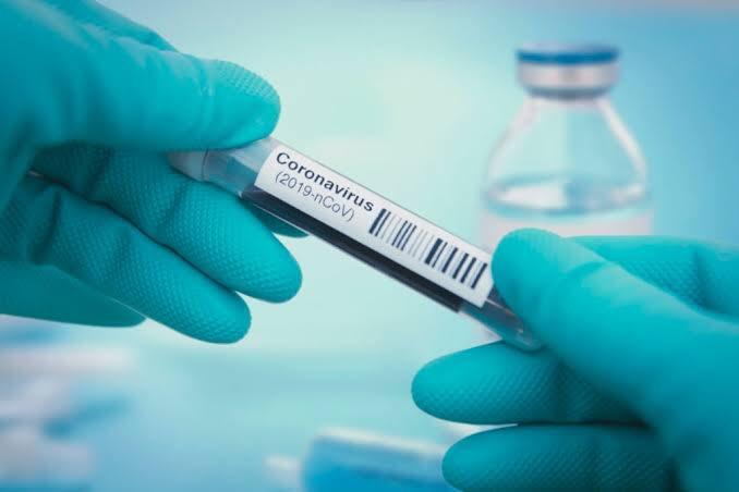 """85 In Lagos, 35 In Abuja"" - Nigeria Records 223 New Coronavirus Cases As Total Rises To 63,731 1"