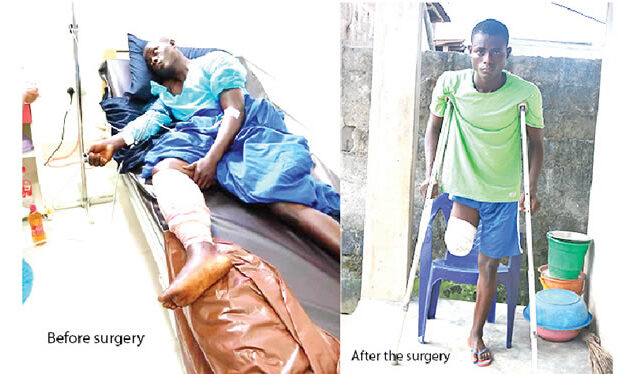My Leg Was Amputated After I Was Shot At Lekki Toll Gate — 23-Year-Old Cobbler Tells His Story