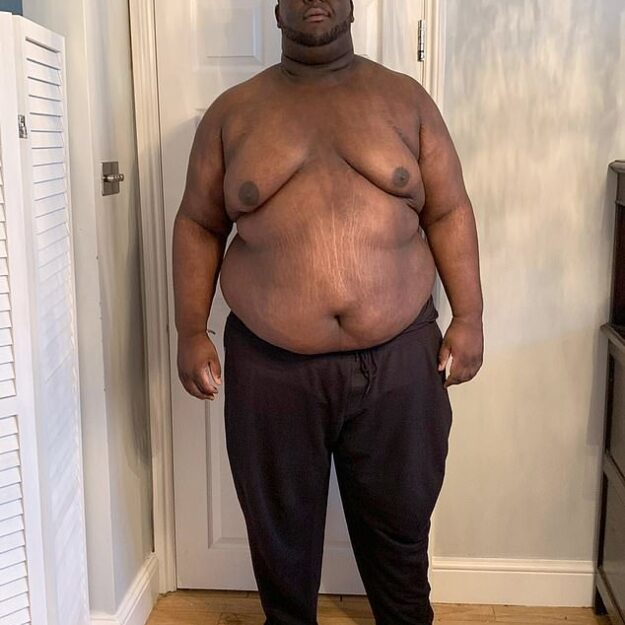 Wow! Obese Man Loses Half His Body Weight After Getting Fed Up With Being The 'Fat Friend' (Photos)