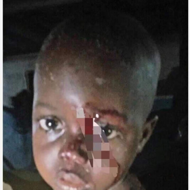 3-Year-Old Boy Rescued From Delta Well After Being Thrown In By Unknown Woman
