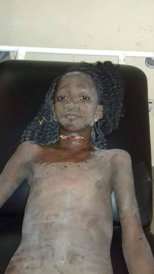 Missing 12-year-old girl found alive with her throat slit after 5 days inside soakaway in Delta (photos)
