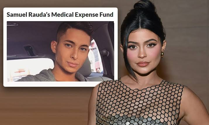 Kylie Jenner Under Fire For Asking Fans To Donate Towards The Surgery Of Her Make-Up Artist 1