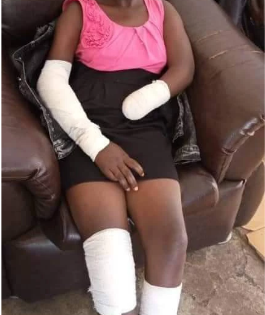 """He Ordered Me To Undress And I Refused"" – Young Girl Narrates How Rapist Cut Off Her Hand"