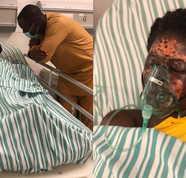 Man Bathes His Wife With Acid After Throwing Her Out Of His House [Photos/Video]