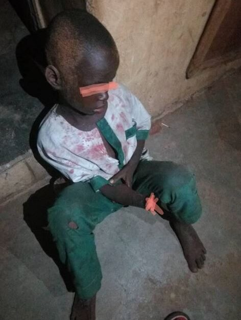 Unknown Person Cuts Off 7-year-old Boy's Hand In Kwara (Photo)