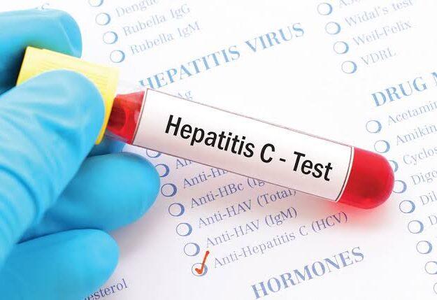 8 Warning signs of Hepatitis C